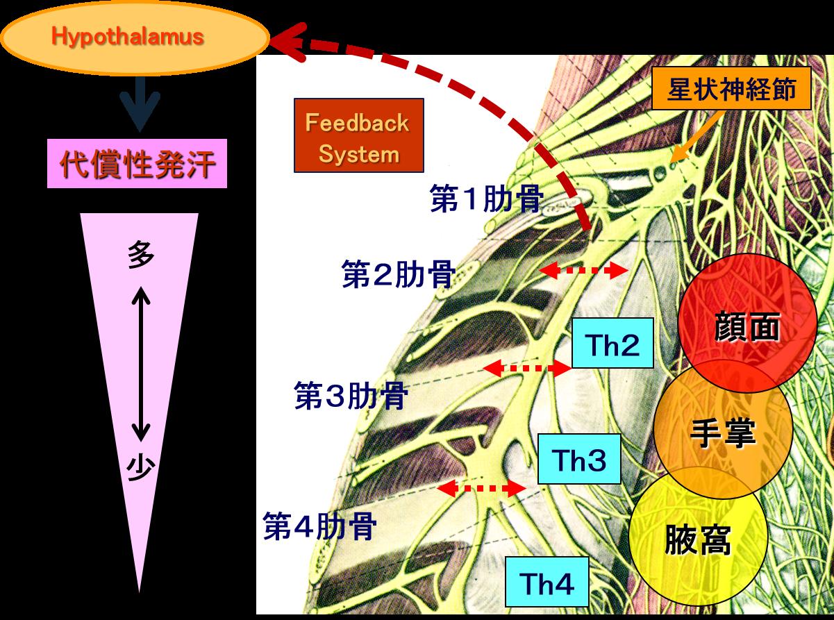 低位交感神経遮断術(低位ETS)